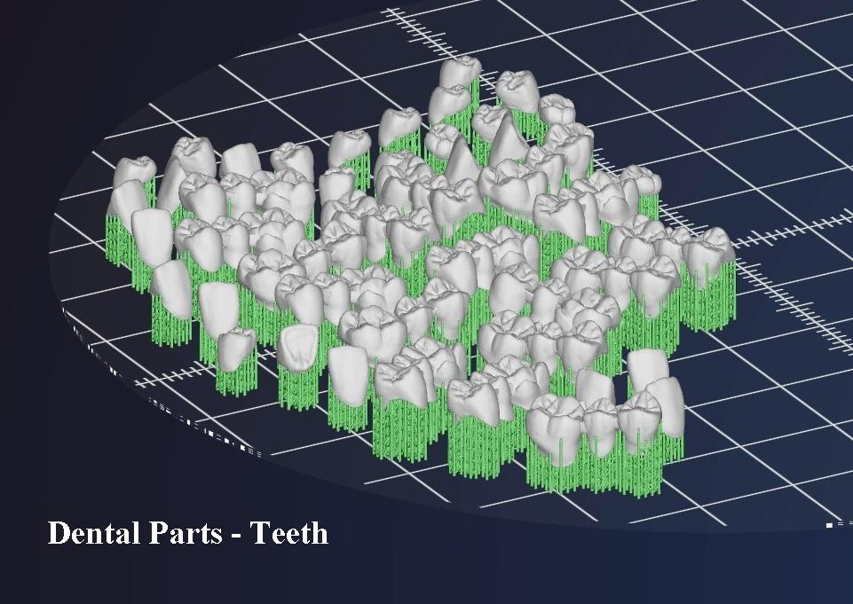 3D принтер за метал - дентални детайли